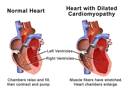 image illustrating cardiomyopathy